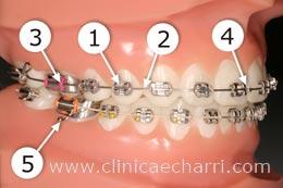 Imagen descripción elementos ortodoncia 1