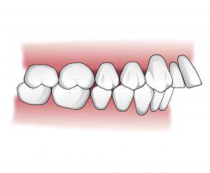 Tratamientos-ortodoncia-intro-01