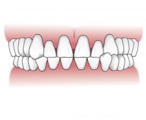 Tratamientos-ortodoncia-intro-02
