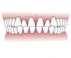 Tratamientos-ortodoncia-intro-03