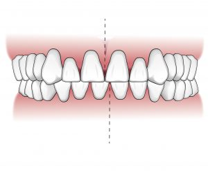 Tratamientos-ortodoncia-intro-04