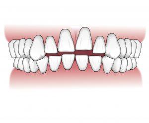 Tratamientos-ortodoncia-intro-05