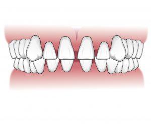 Tratamientos-ortodoncia-intro-06
