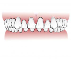 Tratamientos-ortodoncia-intro-07
