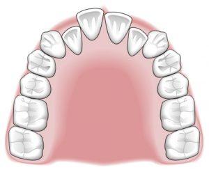 Tratamientos-ortodoncia-intro-08