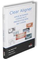 libro_clear_aligner